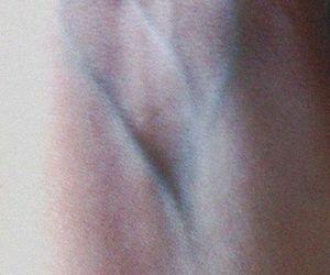 veins