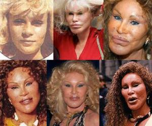 Celebrity Plastic Surgery: Before And After by holywinning ...