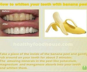 white teeth image