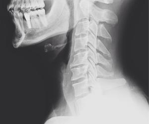 anatomy, bones, and xray image