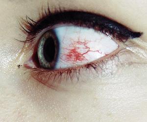 eye, eyes, and blood image