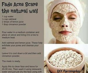 diy, acne, and beauty image