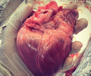 medicine, heart, and love image