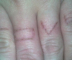 hands, cuttting, and suicidle image