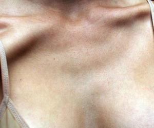 bones, collarbones, and medicine image