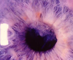 eye and purple image
