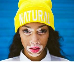 model, natural, and vitiligo image