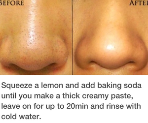 before, skincare, and lemons image