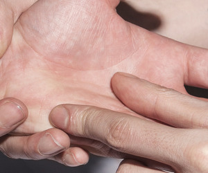 hands and skin image