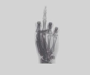 grunge, skeleton, and x ray image