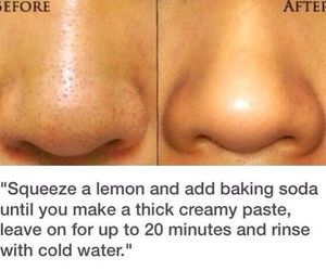 acne, beauty, and lemon juice image