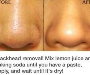 diy, face, and blackheads image