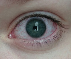 pale and eye image
