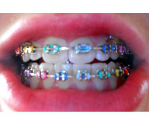 braces, fashion, and hipster image
