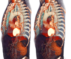 3d, anatomical, and anatomy image