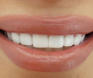 lips, teeth, and lipstick image