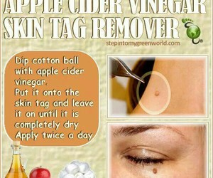 diy, skin tag, and beauty image