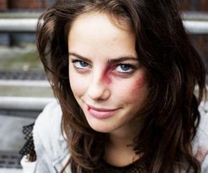 bruise, effy stonem, and fight image