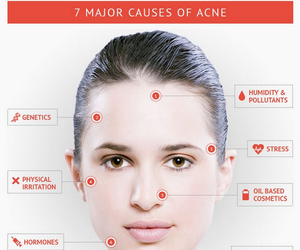 acne, beauty, and PIMPLES image
