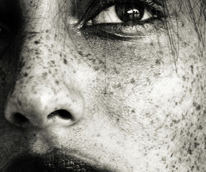 freckles and black and white image