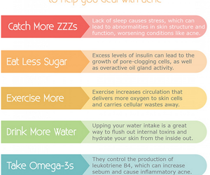 lifestyle, healthy skin, and acne tips image