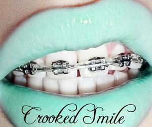 braces, crooked smile, and mint green image