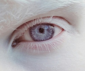 beauty, white, and albinism image