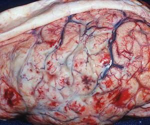 brain, med, and medicine image