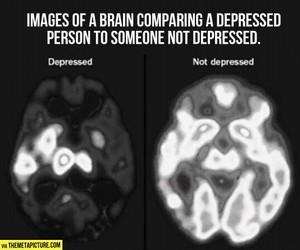 brain, depression, and depressed image