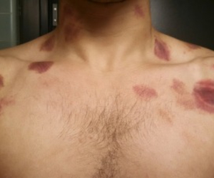 hickey and hickeys image