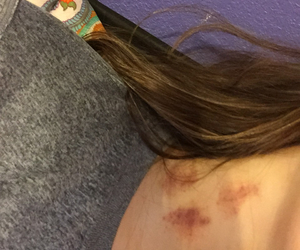 blood, kisses, and neck image