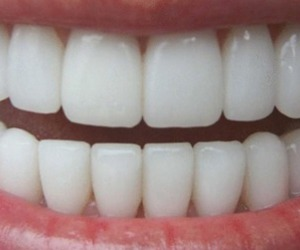 teeth, perfect, and white image