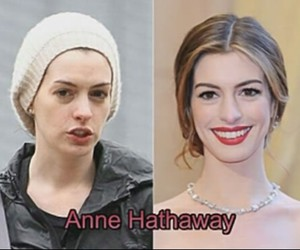 after, anne, and before image