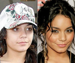 after, celebrities, and before image