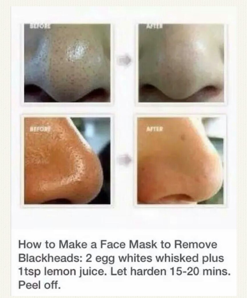 mask, beauty tips, and blackheads remover image