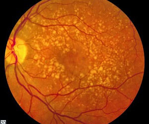 macular degeneration and neural stem cells image
