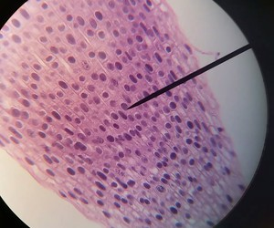 cells, microscope, and onions image
