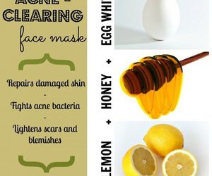 beauty and acne image