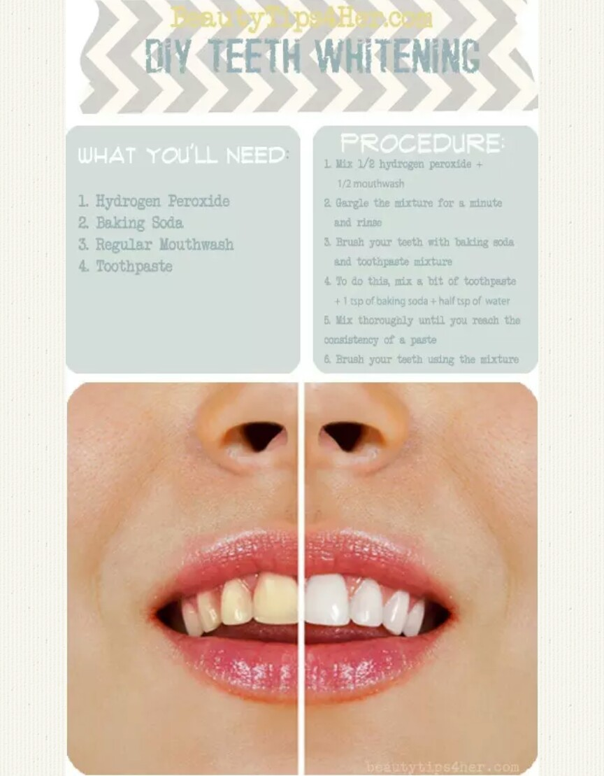 beauty tips and teeth whitening image