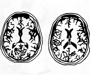 black&white, project, and brains image