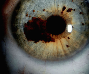 blood, photography, and eye image