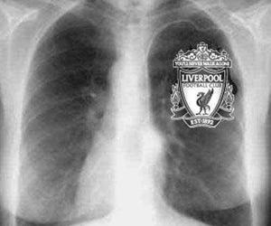 heart, Liverpool, and x-ray image
