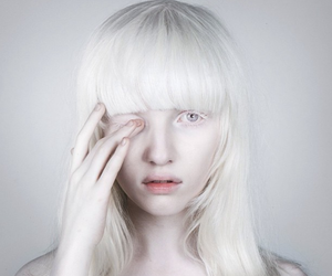 girl, albino, and white image