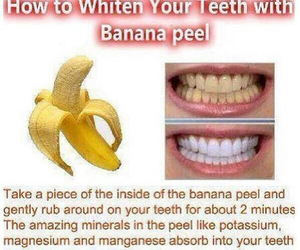 diy, teeth, and banana image