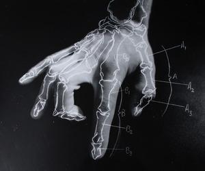 hand, bones, and black and white image