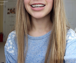 braces, tumblr, and smile image