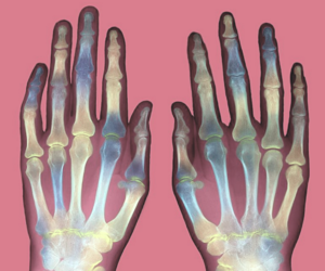 hands, skeleton, and x-ray image