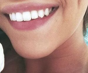 smile, girl, and teeth image