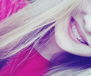 blond, braces, and hair image