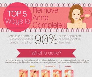 acne, beauty, and skincare image